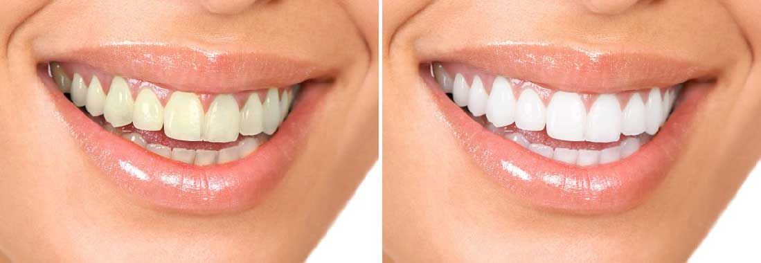 Bite Dental has zoom whitening in studio. Before and after results are typical.