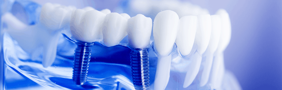 Why you should consider dental implants